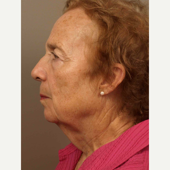 55-64 year old woman treated with Facelift before 3031623