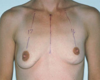 Breast Asymmetry Correction before 281316