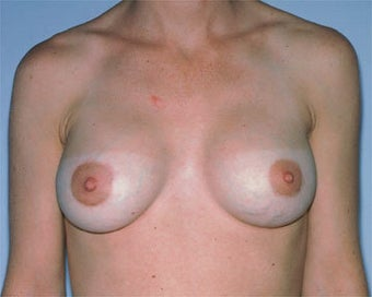 Breast Asymmetry Correction after 281316