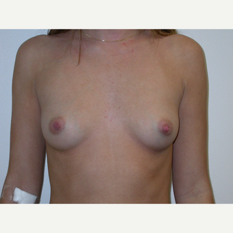 18-24 year old woman treated with Breast Augmentation before 3738001