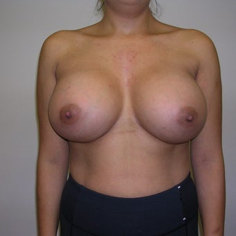 35-44 year old woman treated with Breast Augmentation after 2272721