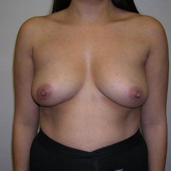35-44 year old woman treated with Breast Augmentation before 2272721