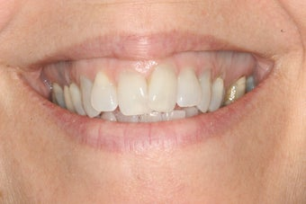 Invisalign and Whitening before 244073