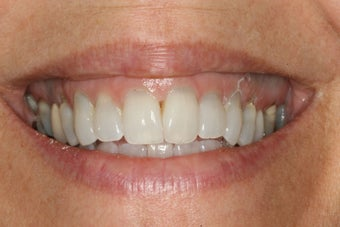 Invisalign and Whitening after 244073