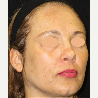 45-54 year old woman treated with Laser Treatment before 3140091