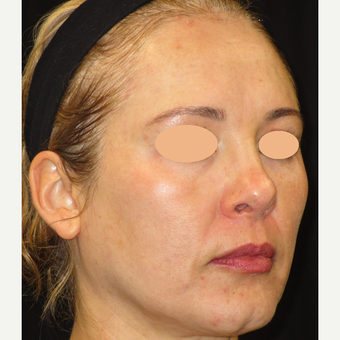 45-54 year old woman treated with Laser Treatment after 3140091