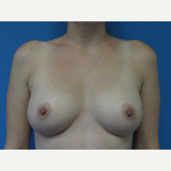 35-44 year old woman treated with Breast Augmentation after 3657796