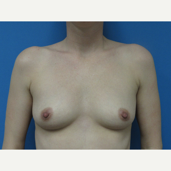 35-44 year old woman treated with Breast Augmentation before 3657796