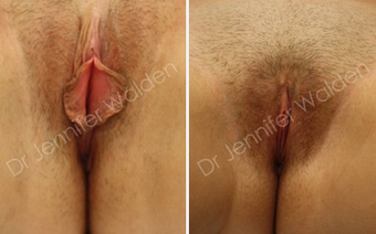 Labiaplasty before 1112606