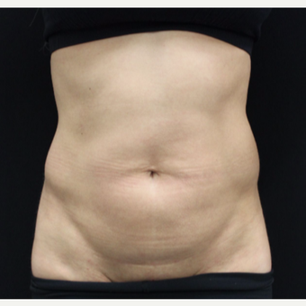 35-44 year old woman treated with Tummy Tuck before 3103970
