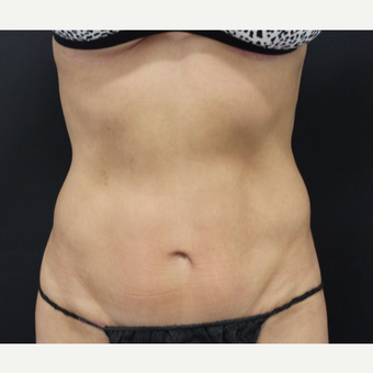 35-44 year old woman treated with Tummy Tuck after 3103970