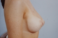 Breast Augmentation after 3446178