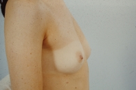 Breast Augmentation before 3446178