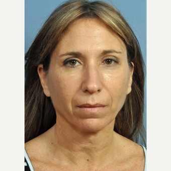 45-54 year old woman treated with Contoura before 3454289