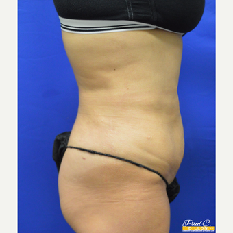 35-44 year old woman treated with Liposuction after 3578007