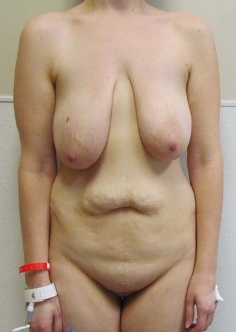 Breast Lift and Tummy Tuck (Abdominoplasty) for this 32 year old female before 1268936