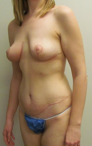 Breast Lift and Tummy Tuck (Abdominoplasty) for this 32 year old female 1268936