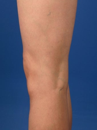 34 Year Old Female Treated for Spider Veins