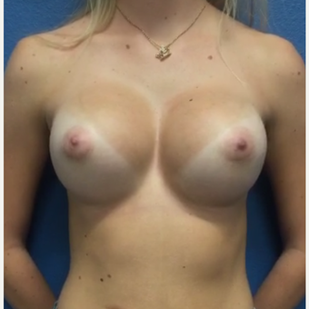 Breast Implants after 3807227