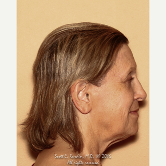 65-74 year old woman treated with SMAS Facelift before 3612172