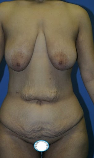 35-44 year old woman treated with Mommy Makeover before 1685254