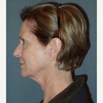 65-74 year old woman treated with Facelift before 3763138