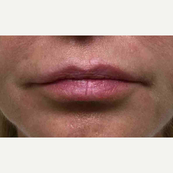 45-54 year old woman treated with Restylane to the lips before 3168458