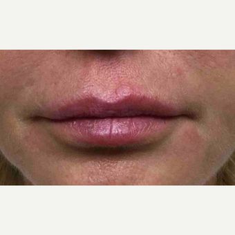 45-54 year old woman treated with Restylane to the lips after 3168458
