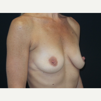 35-44 year old woman treated with Breast Implants before 3652090