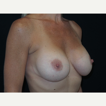 35-44 year old woman treated with Breast Implants after 3652090