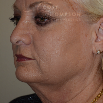 55-64 year old woman treated with Facelift before 3246576