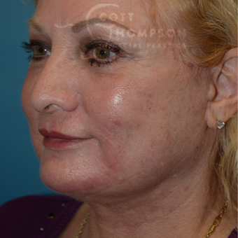 55-64 year old woman treated with Facelift after 3246576