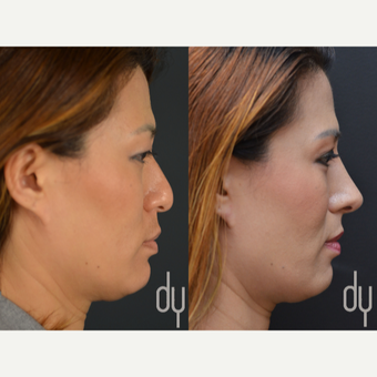25-34 year old woman treated with Asian Rhinoplasty before 2990827