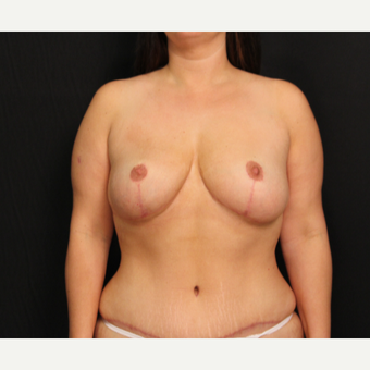 32 year old female with bilateral breast lift after 3575978