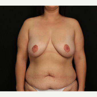 32 year old female with bilateral breast lift before 3575978