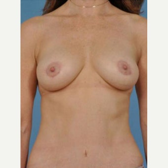 45-54 year old woman treated with Breast Fat Transfer after 2279601