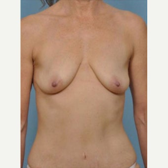 45-54 year old woman treated with Breast Fat Transfer before 2279601
