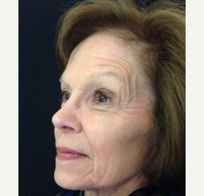 4cc of Voluma filler cheeks & temples after 2351794