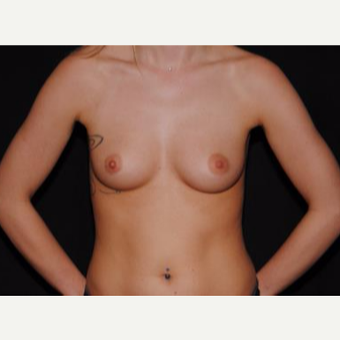 18-24 year old woman treated with Breast Implants before 3593608