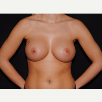 18-24 year old woman treated with Breast Implants after 3593608
