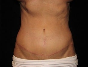Abdominoplasty (Tummy Tuck) after 1092885