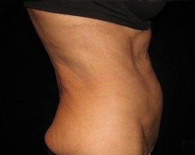 Abdominoplasty (Tummy Tuck) 1092885