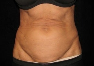 Abdominoplasty (Tummy Tuck) before 1092885