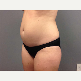 35-44 year old woman treated with Tummy Tuck before 3202373