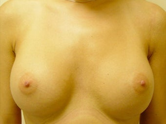 Female Patient Before and After Breast Lift with Implants after 1394740
