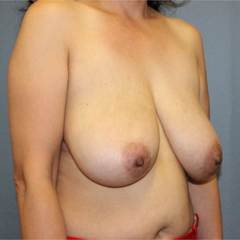 35 year old had a Breast Reduction with Lift to improve breast sag before 3467193