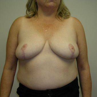 55-64 year old woman treated with Breast Reduction after 3459521