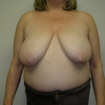 55-64 year old woman treated with Breast Reduction before 3459521
