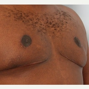 Male Breast Reduction after 1793965