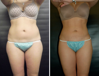 Liposuction before 1149445